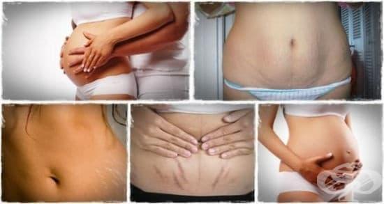 Средства за предотвратяване и премахване на стрии свързани с бременността - изображение