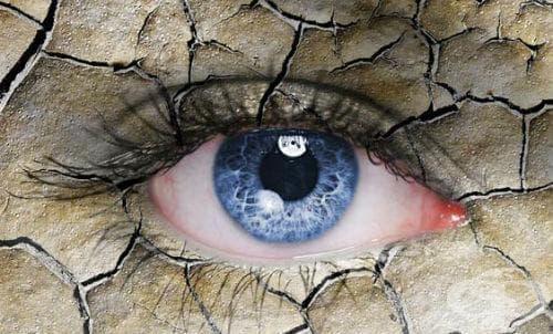 Алтернативно лечение на синдрома на сухото око - изображение