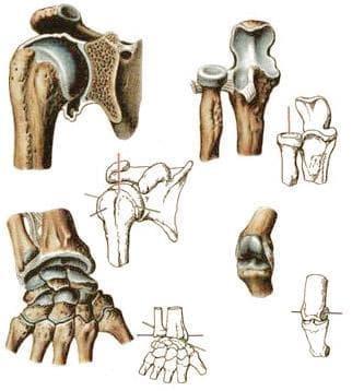 Стави на горния крайник (articulationes membri superioris) - изображение