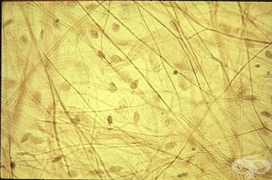 Хлабава съединителна тъкан (Textus connectivus fibrosus laxus) - изображение