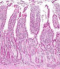 Хистологично устройство на червата - изображение