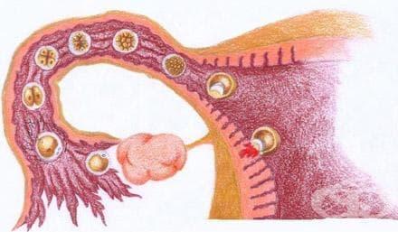 Имплантация (implantatio) - изображение