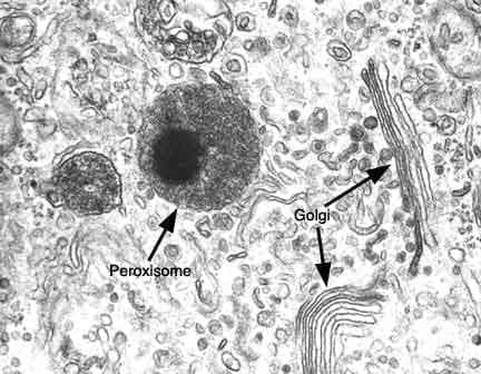 Пероксизоми (Peroxisomes) - изображение