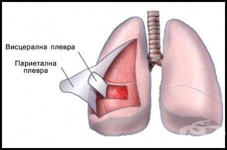 Плевра (pleura) - изображение