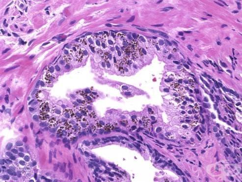Ендокринен секреторен епител (Glandulae endocrinae) - изображение