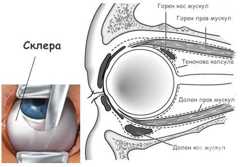 Склера (Sclera) - изображение