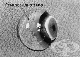 Стъкловидно тяло (Corpus vitreum) - изображение