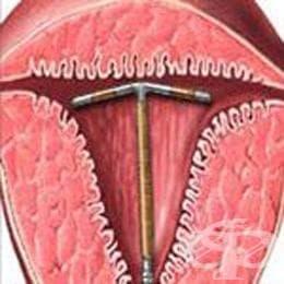 пластмасово вътрематочно приспособление (спирала) с мед  (plastic IUD with copper) | ATC G02BA02 - изображение