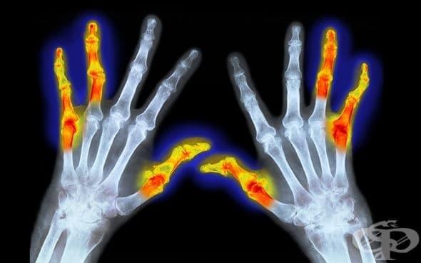 Канабис срещу ревматоиден артрит - изображение