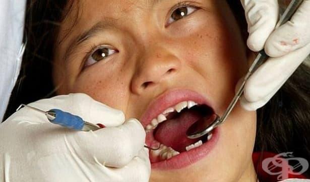 Децата се заразяват с кариесна бактерия от близки и връстници - изображение