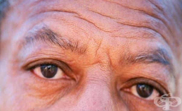 Много дълбоките бръчки на челото са сигнал за риск от смърт вследствие сърдечносъдово заболяване - изображение