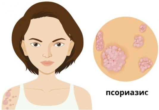 Как да разпознаем псориазиса - изображение
