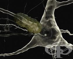 Болестта на Алцхаймер - обратима ли е - изображение