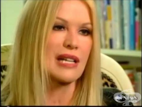 Блондика с 52 пластични операции влезе в Гинес - изображение