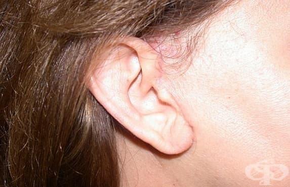 Рискът от инсулт може да бъде определен по ушните лобове - изображение