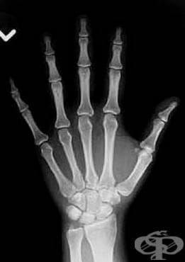 Видима светлина вместо рентгенови лъчи - изображение