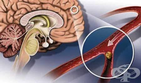 Нов метод за лечение на хеморагичен инсулт - изображение