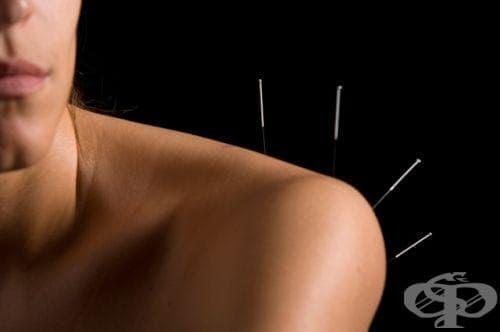 Иглотерапията лекува болести, пред които класическата медицина е безсилна - изображение