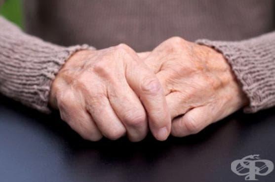 Жена открива болни от Паркинсон по миризмата - изображение