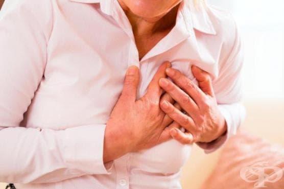 Животът на по-висок етаж намалява шанса за оцеляване при инфаркт - изображение
