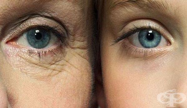 Как да забавим появата на бръчки и да се радваме на млада и здрава кожа - 2 част - изображение