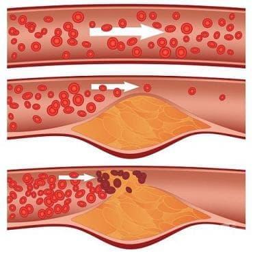 Какво показват високите нива на триглицериди в кръвта и как да ги свалим? - изображение