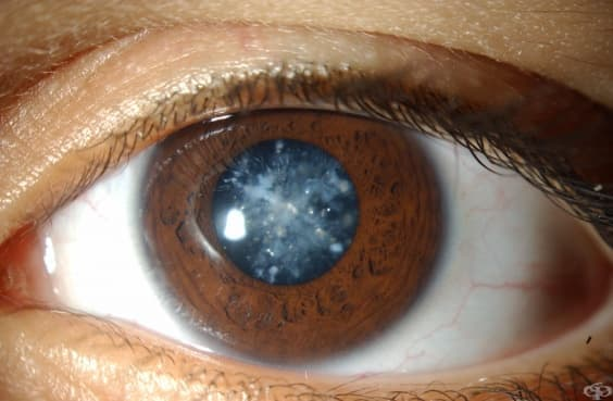 Рискът от катаракта е по-голям при страдащите от астма и сенна хрема  - изображение