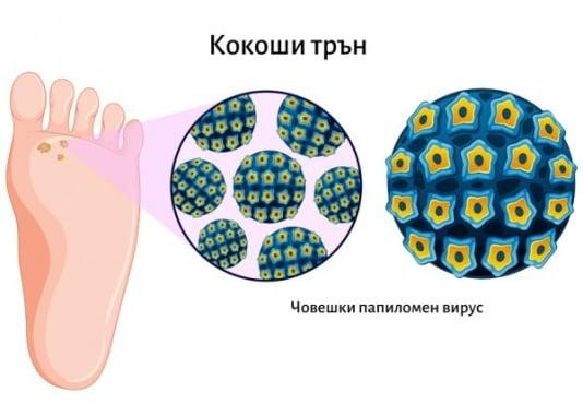 Кокоши трън – причини за поява и лечение - изображение
