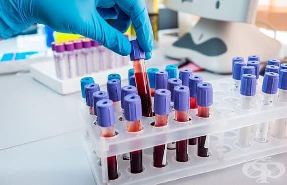 Склонността към деменция ще се определя с кръвен тест - изображение