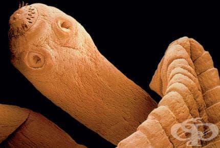 Как се лекува ехинококова киста в белия дроб? - изображение