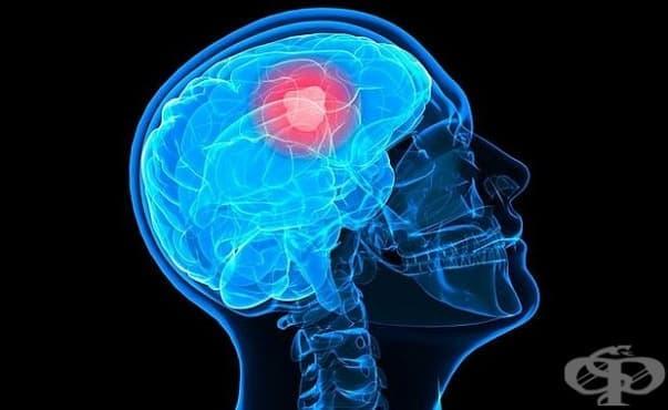 Използваната при рак на мозъка лъчева терапия може да го увреди - изображение