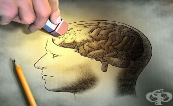 Рискът от деменция е по-голям при болните от лупус - изображение