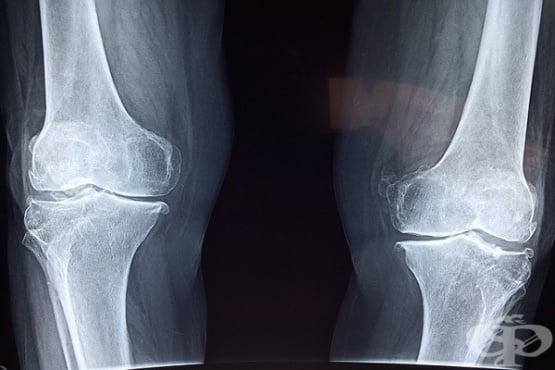 Недостигът на важни ензими в организма може да доведе до фрактура на костите  - изображение