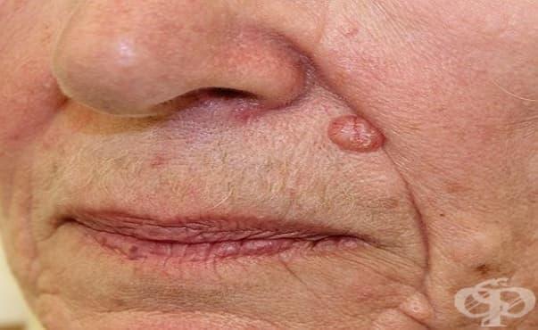 Възрастта може да е фактор при лечението на немеланомен рак на кожата - изображение