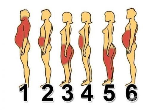 Определете своя тип затлъстяване и вижте как да решите проблема - изображение