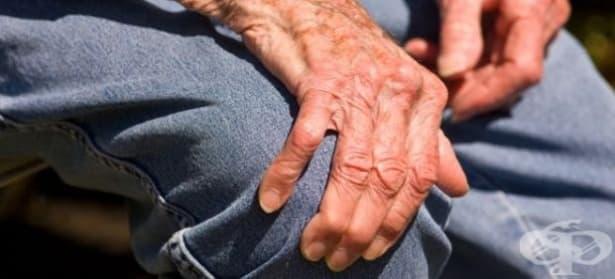 Паркинсон може да се диагностицира по миризмата - изображение