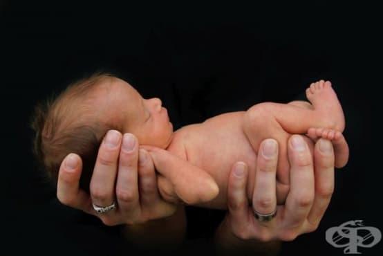 Родените преждевременно мислят различно, когато станат възрастни - изображение