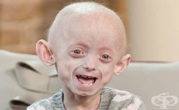 Лекарство за рак се оказва последна надежда за болните от прогерия - изображение