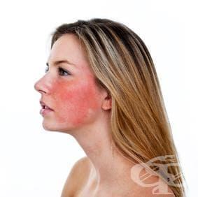 За какво е знак зачервяването на лицето - изображение