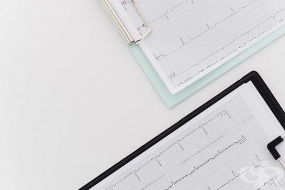 Сърдечният ритъм като инструмент за определяне степента на съзнание при пациенти след кома  - изображение