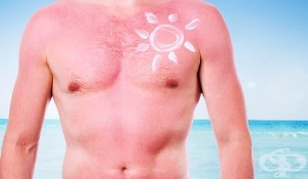 Слънцезащитните лосиони водят до безплодие при мъжете - изображение