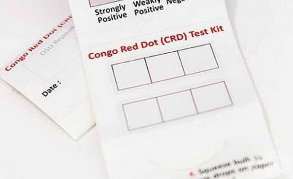 Американски изследователи прилагат прост тест на урина за диагностициране на прееклампсия - изображение