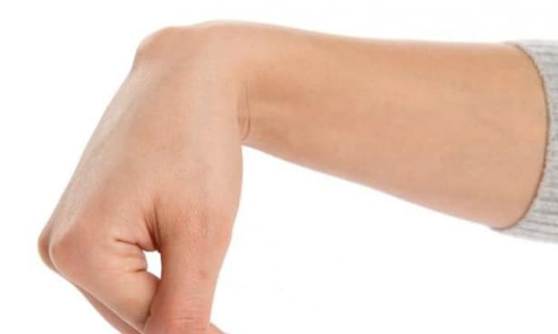 Подутини около китката – каква е причината - изображение