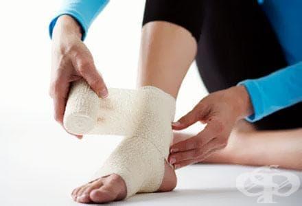 При травма на глезена, може да са засегнати и вените - изображение