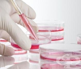 Болест на Шагас - новият американски СПИН - изображение
