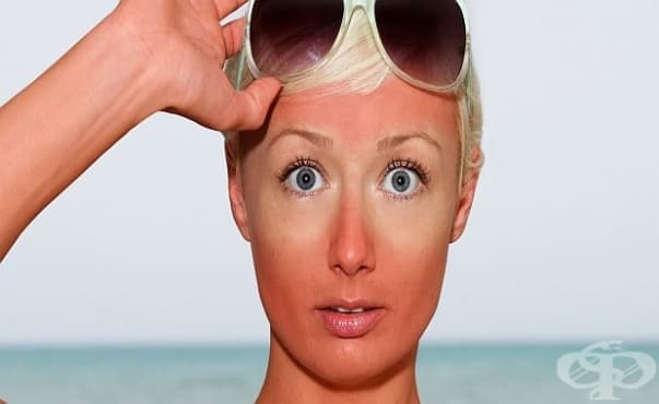 Приемът на витамин D след слънчево изгаряне намалява възпалението  - изображение