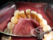 Защо е важно да почистваме зъбния камък - изображение