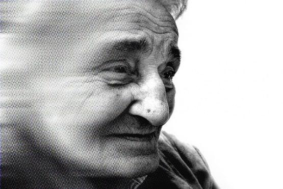 Запълнените с течност разширени периваскуларни пространства в мозъка – биомаркер за деменция - изображение