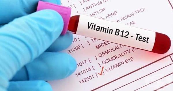 15 симптома за дефицит на витамин В12 при жените над 40 - изображение
