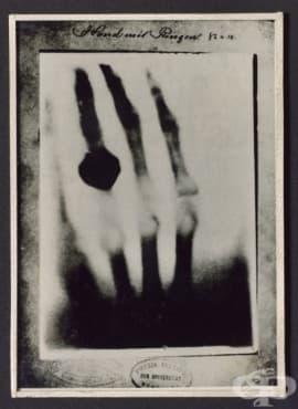 Първата рентгенова снимка, направена от Вилхелм Рьонтген през 1895 година - изображение